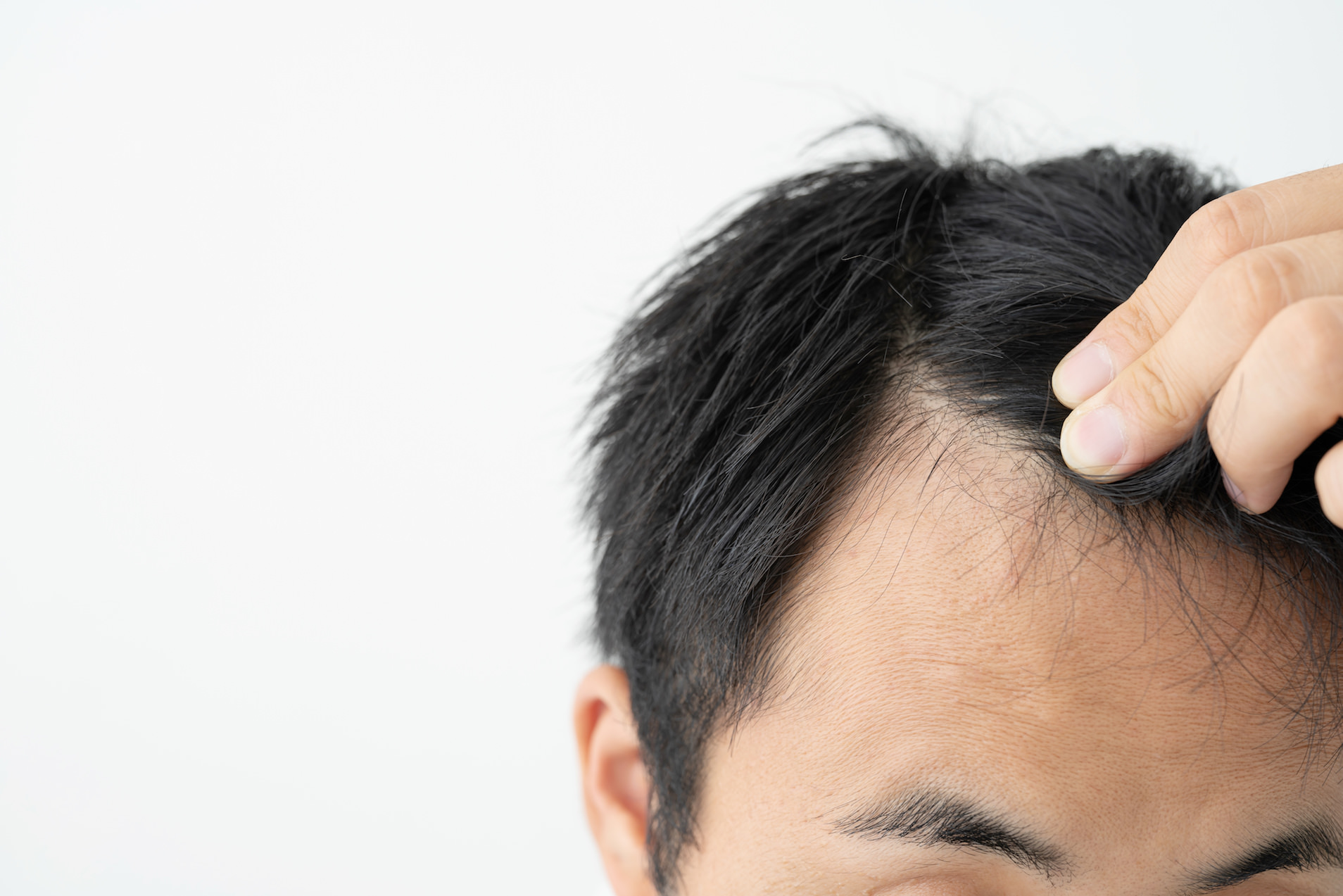 薄毛 前髪