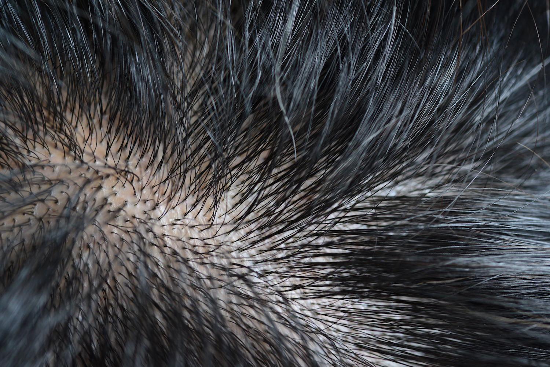シャンプー 男性 ニキビ 頭皮