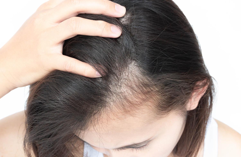 湿疹 ストレス 頭皮