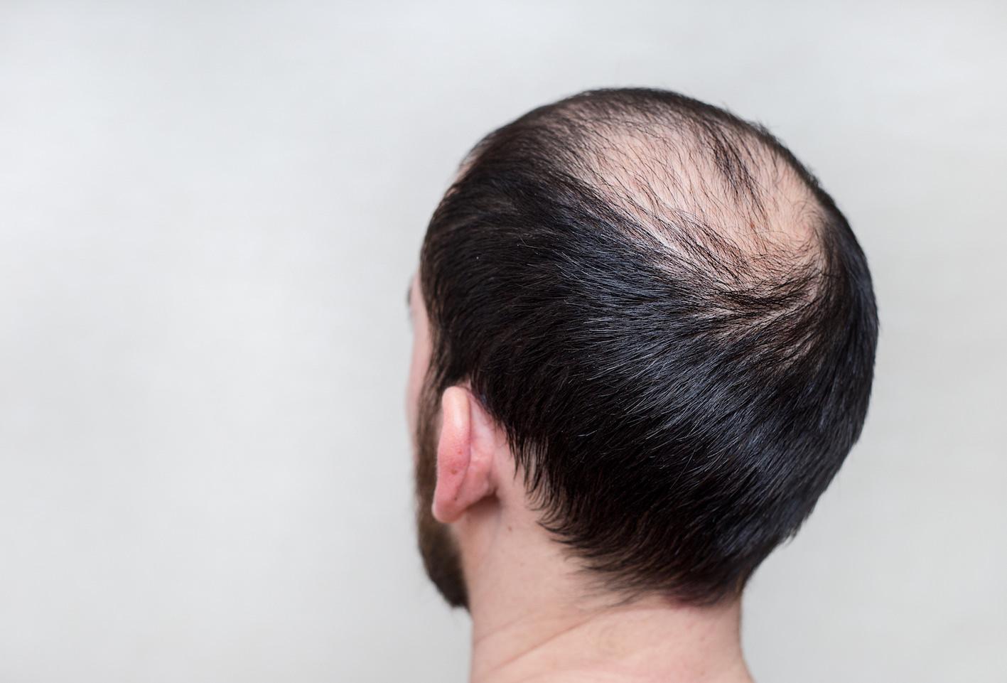 Hasil gambar untuk rambut botak